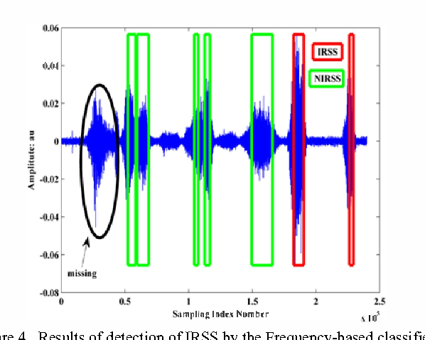 Automatic detection of inspiration related snoring signals