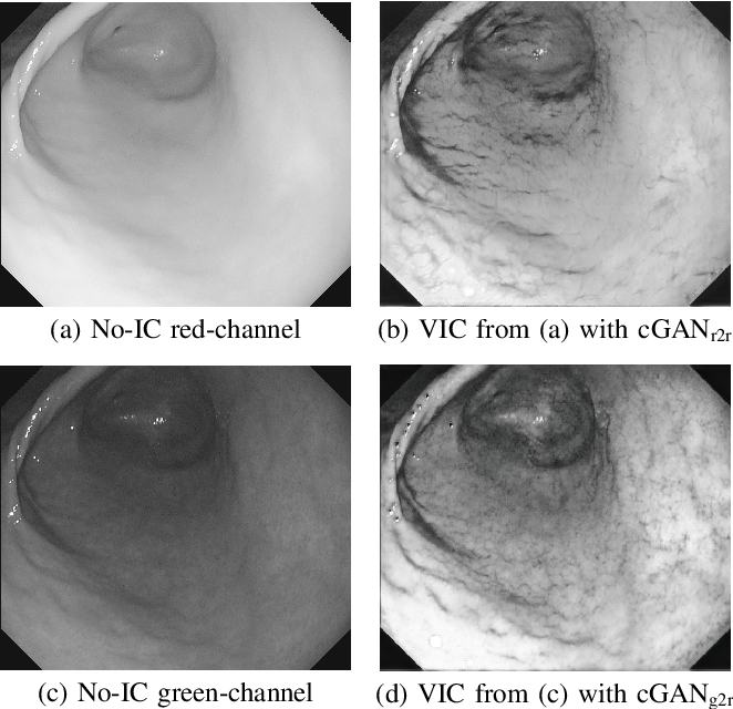 Figure 2 for Stomach 3D Reconstruction Based on Virtual Chromoendoscopic Image Generation