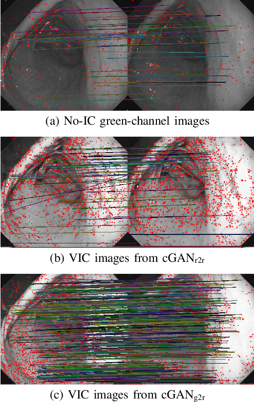 Figure 4 for Stomach 3D Reconstruction Based on Virtual Chromoendoscopic Image Generation