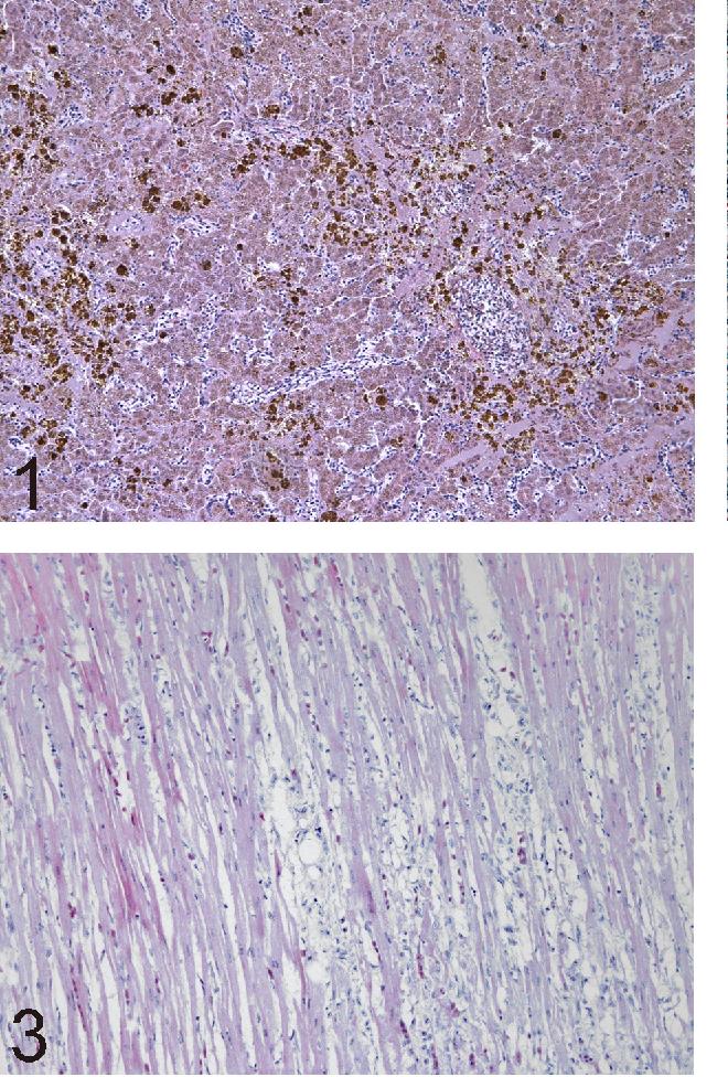 Fig. 2. Blackbird (Turdus merula). Panlobular storage of large dark blue material considered to be iron deposits associated with severe hepatocytes sideronecrosis (Perls' Prussian blue staining, × 20).