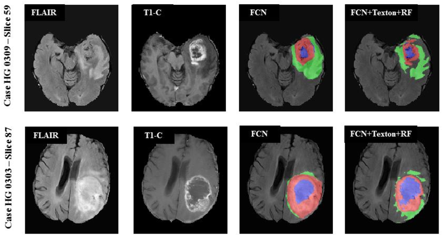 Figure 3 for Multimodal MRI brain tumor segmentation using random forests with features learned from fully convolutional neural network