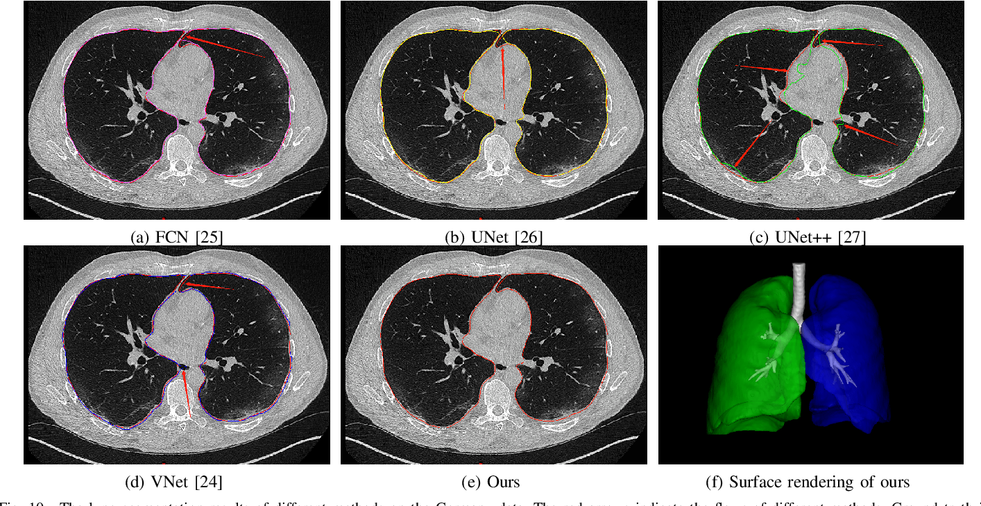 Figure 2 for COVID-19 Chest CT Image Segmentation -- A Deep Convolutional Neural Network Solution