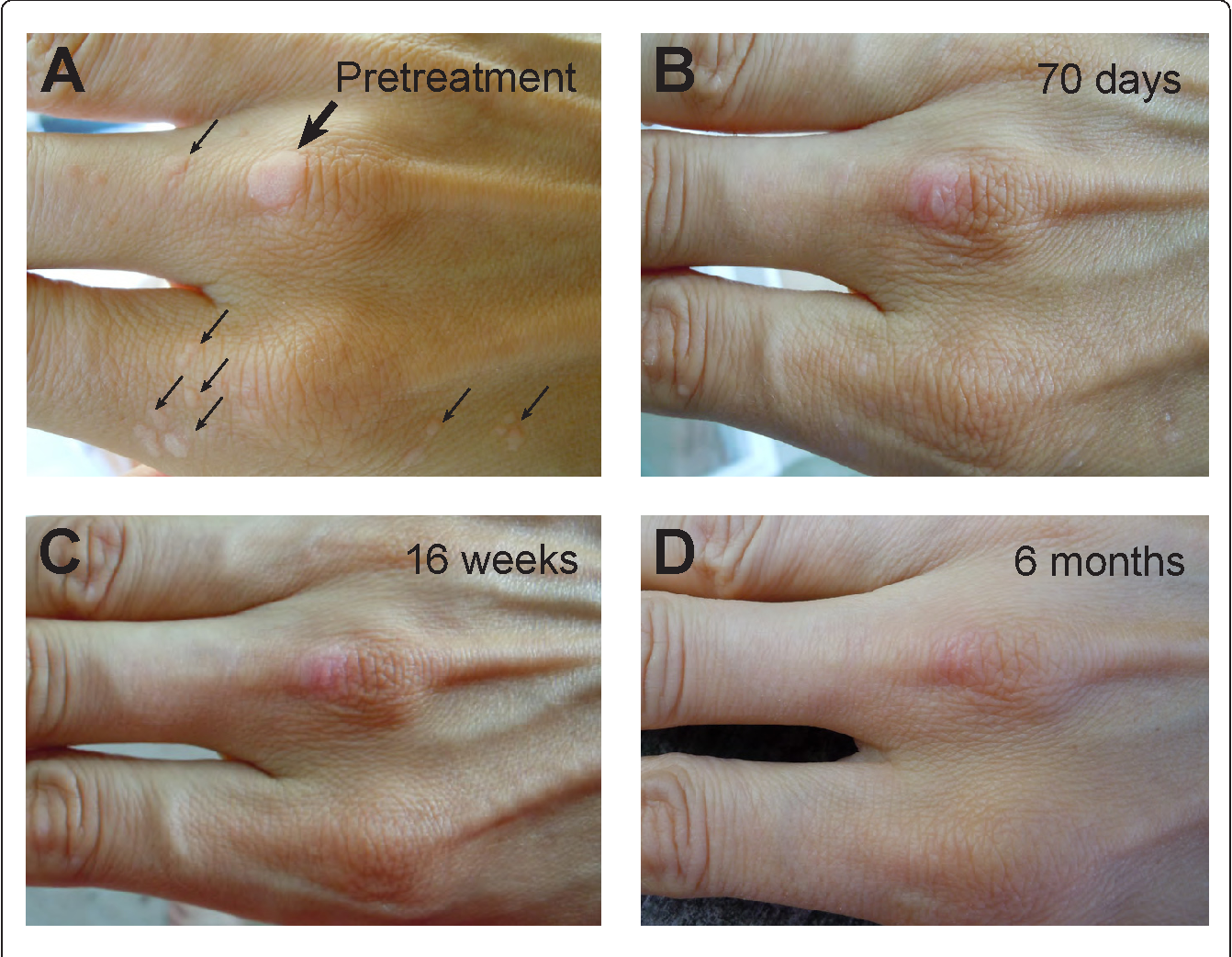 Figure 1 from Topical vitamin A treatment of recalcitrant common