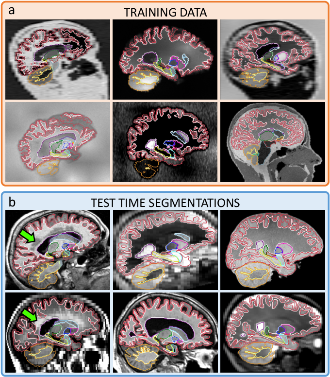 Figure 1 for SynthSeg: Domain Randomisation for Segmentation of Brain MRI Scans of any Contrast and Resolution