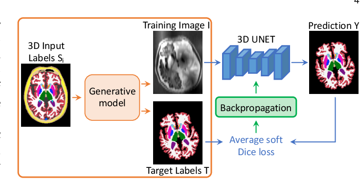 Figure 3 for SynthSeg: Domain Randomisation for Segmentation of Brain MRI Scans of any Contrast and Resolution