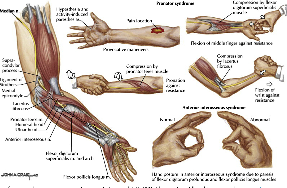 Diagnosis and Treatment of Work-Related Proximal Median and Radial ...