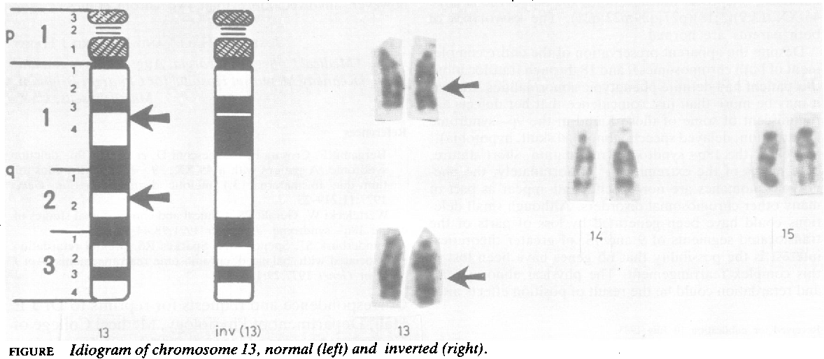 FIGURE Idiogram ofchromosome 13, normal (left) and inverted (right).