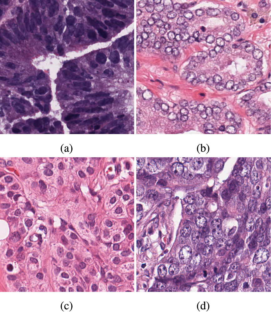 Figure 1 for A Deep Learning Algorithm for One-step Contour Aware Nuclei Segmentation of Histopathological Images