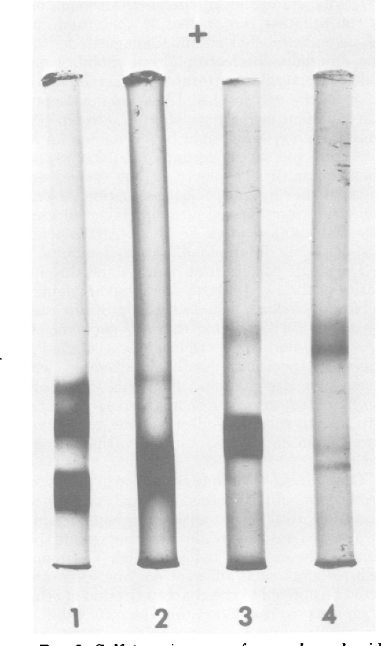 FIG. 2. Sulfatase isozymes from gel electrophoresis.