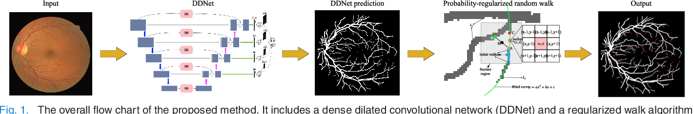 Figure 1 for Dense Dilated Network with Probability Regularized Walk for Vessel Detection