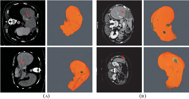 Figure 1 for RA-UNet: A hybrid deep attention-aware network to extract liver and tumor in CT scans