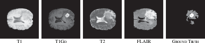Figure 3 for RA-UNet: A hybrid deep attention-aware network to extract liver and tumor in CT scans