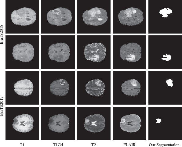 Figure 4 for RA-UNet: A hybrid deep attention-aware network to extract liver and tumor in CT scans