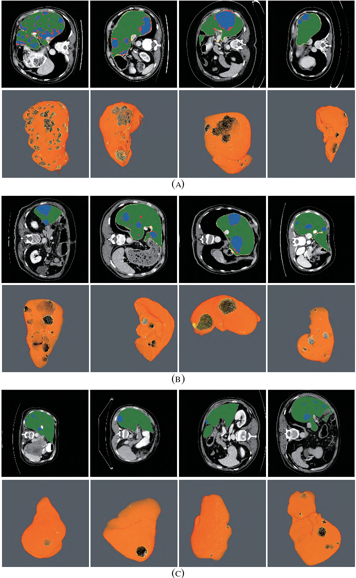 Figure 2 for RA-UNet: A hybrid deep attention-aware network to extract liver and tumor in CT scans