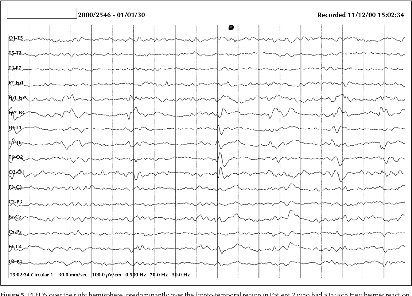 Figure 5 from Neurosyphilis presenting with status epilepticus