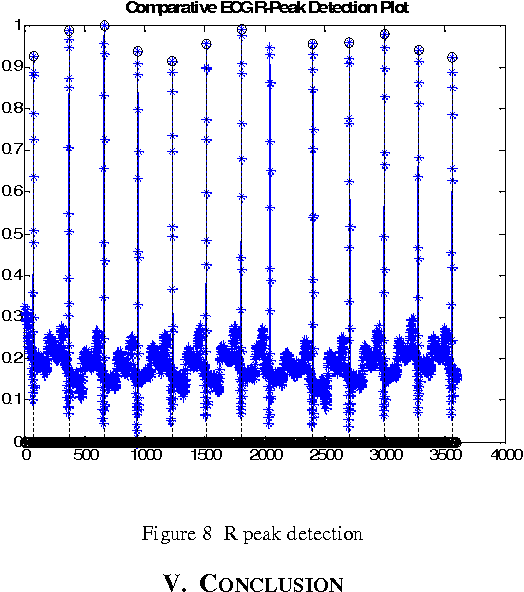 Figure 8 from ECG Analysis and R Peak Detection Using