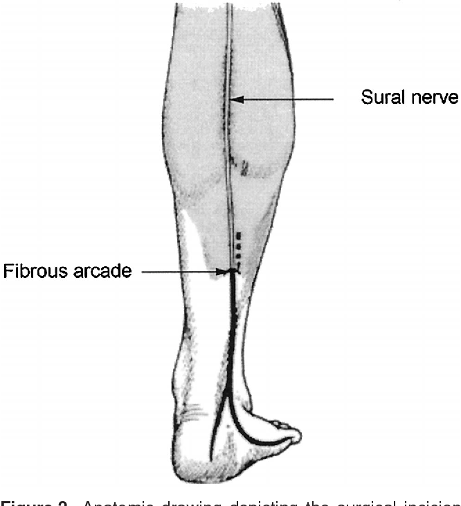 Chronic Calf Pain In Athletes Due To Sural Nerve Entrapment
