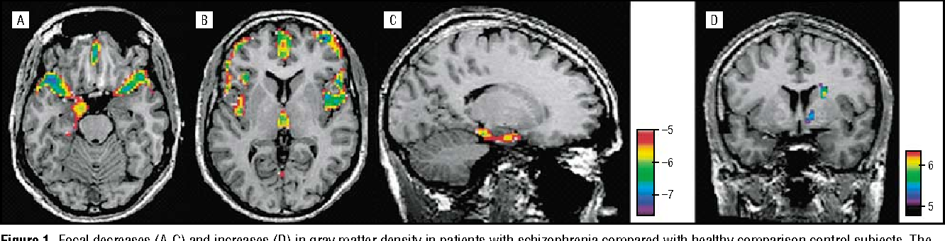 Gray Matter Density Increases During >> Figure 1 From Focal Gray Matter Density Changes In Schizophrenia