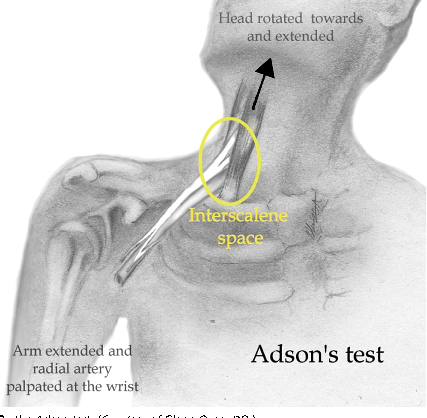 Figure 3 from Thoracic outlet syndrome. - Semantic Scholar