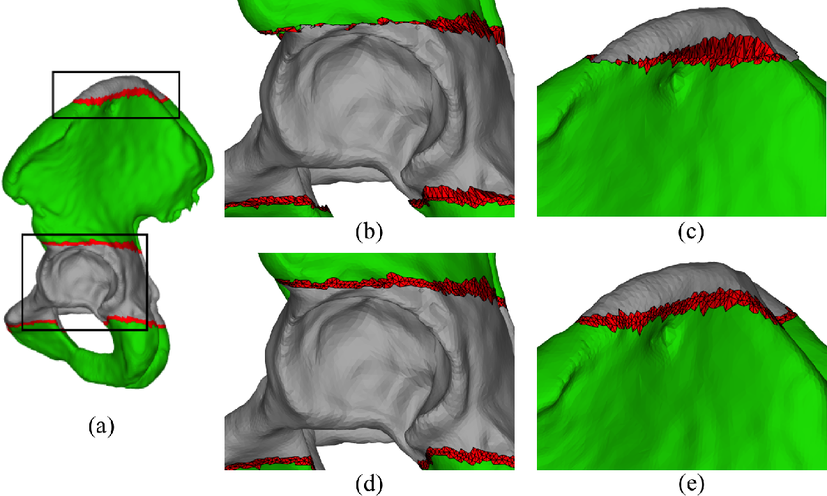 Figure 1 for Pelvis Surface Estimation From Partial CT for Computer-Aided Pelvic Osteotomies