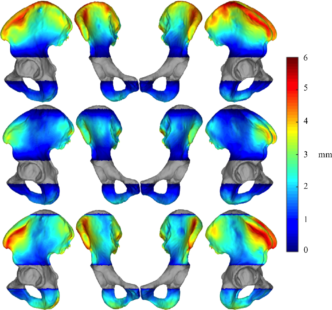 Figure 4 for Pelvis Surface Estimation From Partial CT for Computer-Aided Pelvic Osteotomies