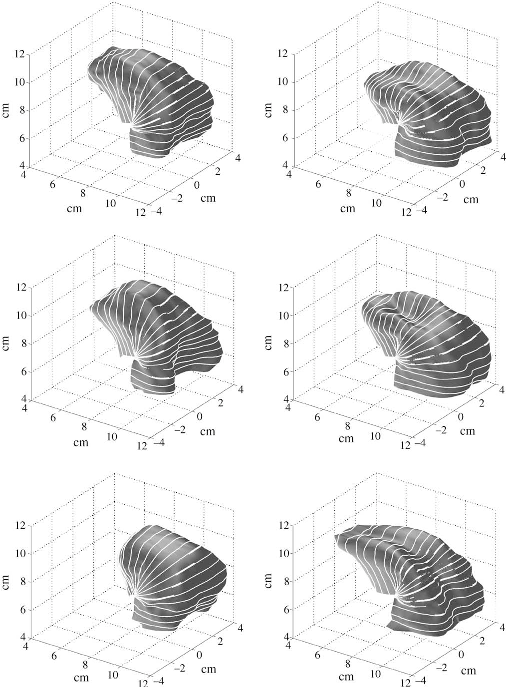 Figure 5. Nomograms for the tongue model for parameters JH, TB, TD, TT, TA and T1(from top to bottom; left –3, right + 3).