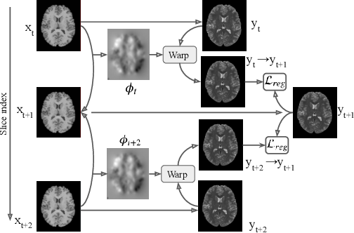 Figure 3 for Flow-based Deformation Guidance for Unpaired Multi-Contrast MRI Image-to-Image Translation