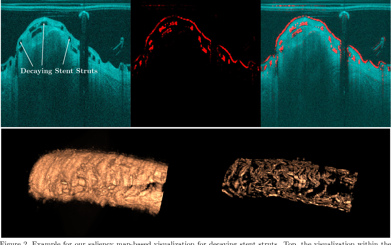 Figure 2 for Bioresorbable Scaffold Visualization in IVOCT Images Using CNNs and Weakly Supervised Localization