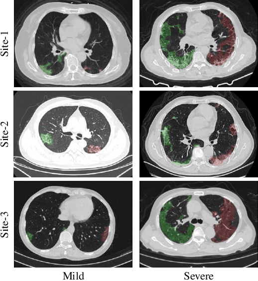 Figure 1 for Cross-Site Severity Assessment of COVID-19 from CT Images via Domain Adaptation