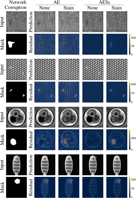 Figure 3 for Improved anomaly detection by training an autoencoder with skip connections on images corrupted with Stain-shaped noise