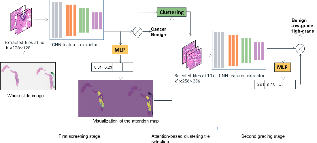 Figure 1 for An attention-based multi-resolution model for prostate whole slide imageclassification and localization