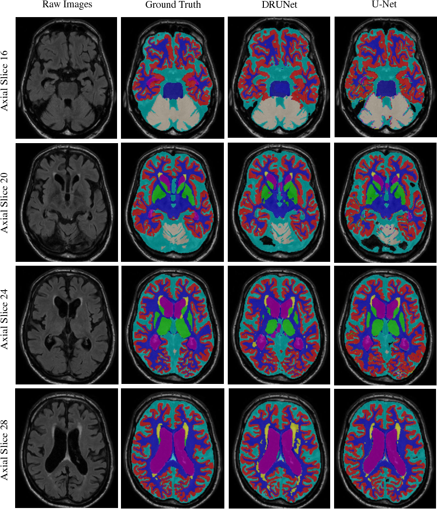 Figure 4 for Automatic Brain Structures Segmentation Using Deep Residual Dilated U-Net