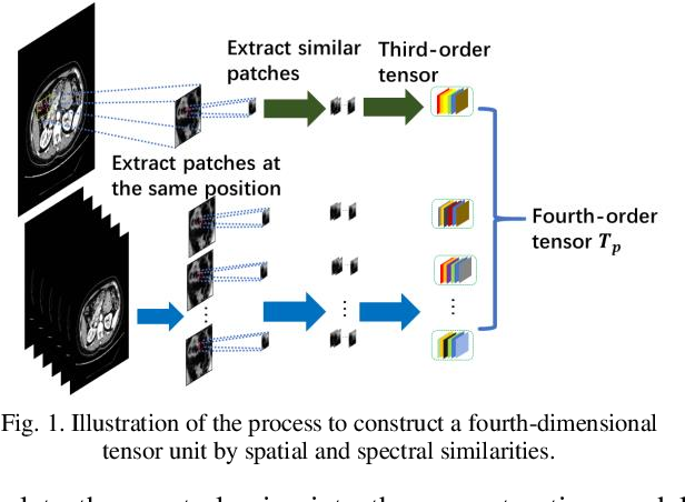 Figure 1 for Fourth-Order Nonlocal Tensor Decomposition Model for Spectral Computed Tomography