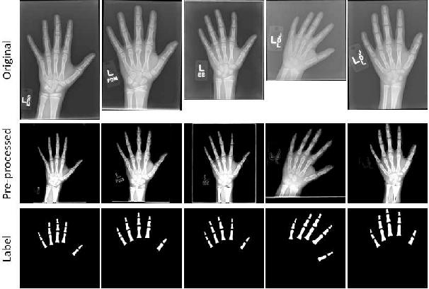 Figure 1 for Semi-Supervised Self-Taught Deep Learning for Finger Bones Segmentation