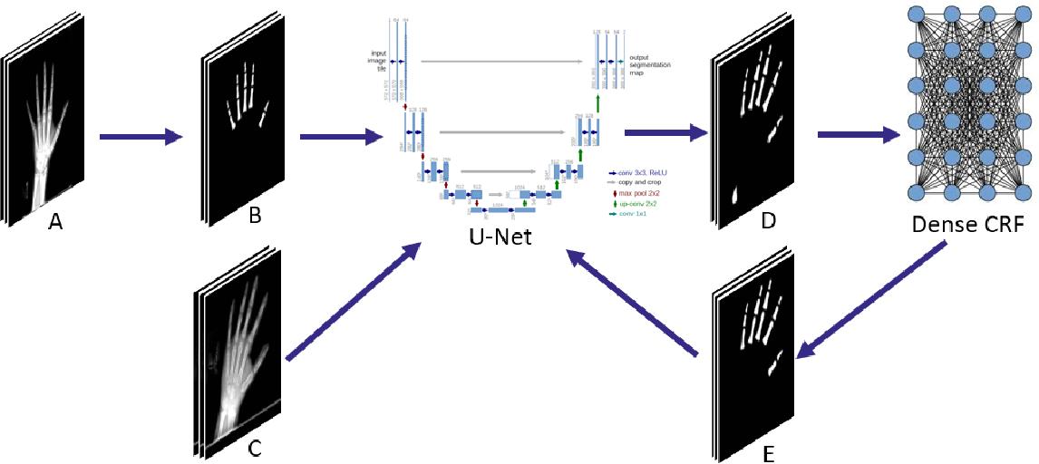 Figure 2 for Semi-Supervised Self-Taught Deep Learning for Finger Bones Segmentation