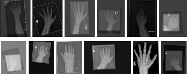 Figure 4 for Semi-Supervised Self-Taught Deep Learning for Finger Bones Segmentation