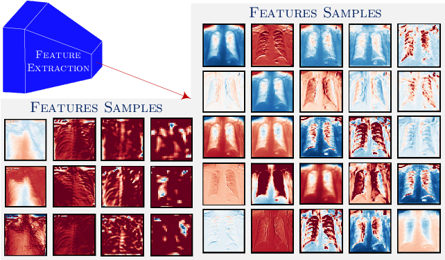 Figure 2 for GraphXCOVID: Explainable Deep Graph Diffusion Pseudo-Labelling for Identifying COVID-19 on Chest X-rays