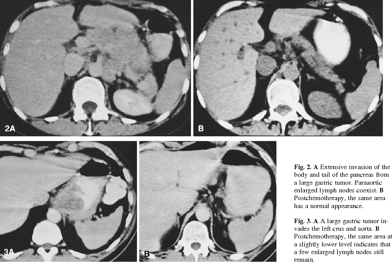 Fig. 2. A Extensive invasion of the body and tail of the pancreas from a large gastric tumor. Paraaortic enlarged lymph nodes coexist. B Postchemotherapy, the same area has a normal appearance.