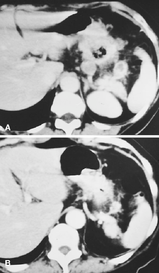 Fig. 4. A Enlarged lymph nodes, ''dirty'' fat, and strands of soft tissue density surround the gastric tumor. B Postchemotherapy, one lymph node remains, and it is smaller, the fat is clearer, and the tumor has shrunk.
