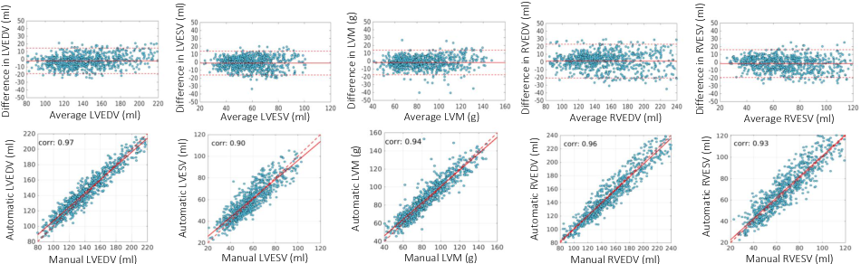Figure 4 for High Throughput Computation of Reference Ranges of Biventricular Cardiac Function on the UK Biobank Population Cohort