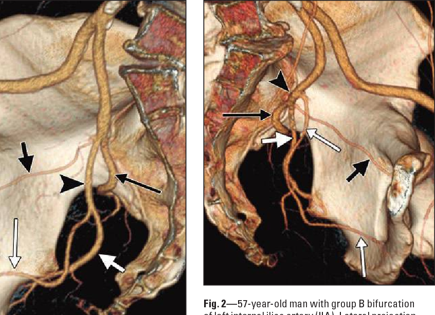 Figure 2—57 from Angiographic anatomy of the male pelvic arteries ...