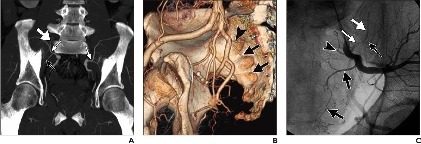 Figure 10—62 from Angiographic anatomy of the male pelvic arteries ...