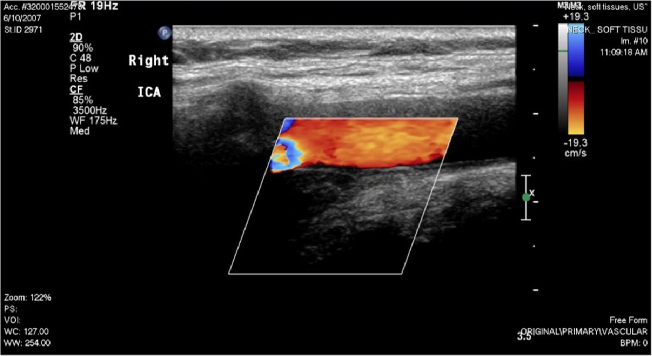 Figure 3 from Ultrasound for the Diagnosis of Carotidynia