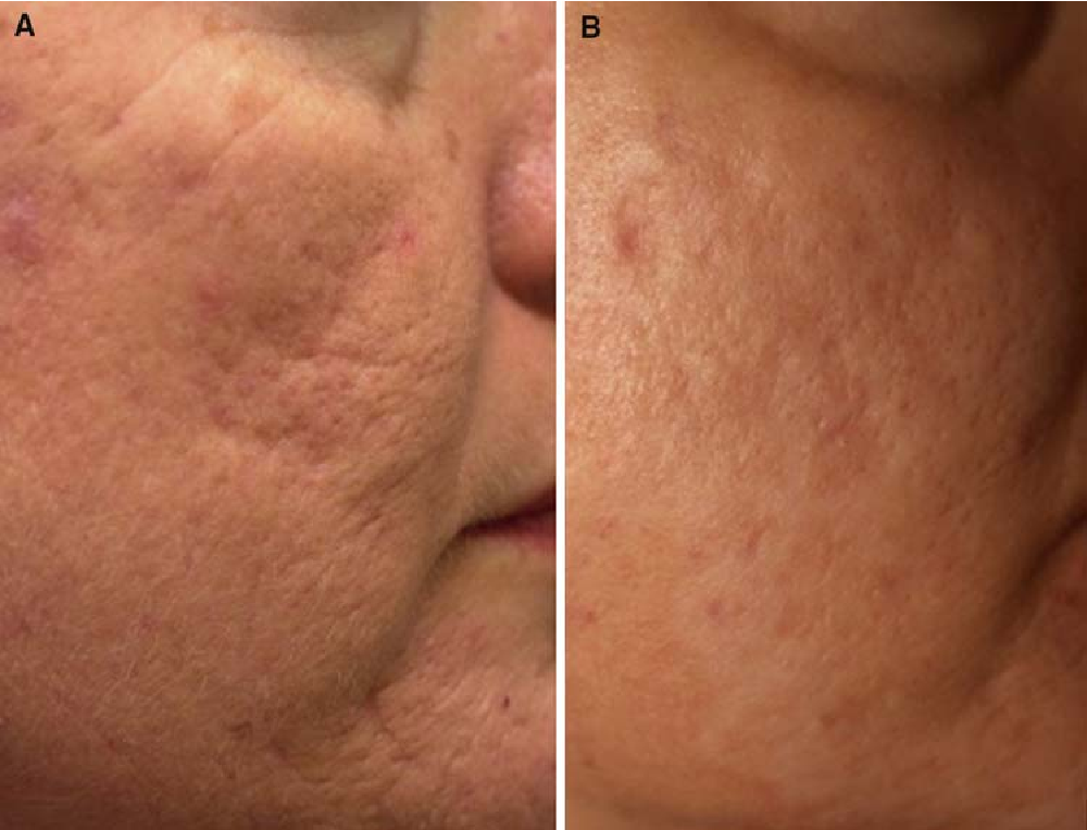 Figure 2 from Injectable Poly-l-Lactic Acid: A Novel Sculpting Agent