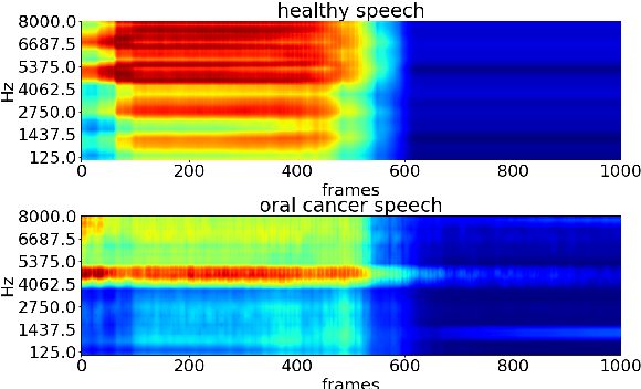 Figure 2 for Detecting and analysing spontaneous oral cancer speech in the wild