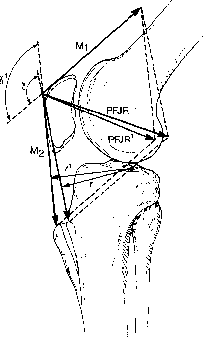 Figure 2 6 From The Patella
