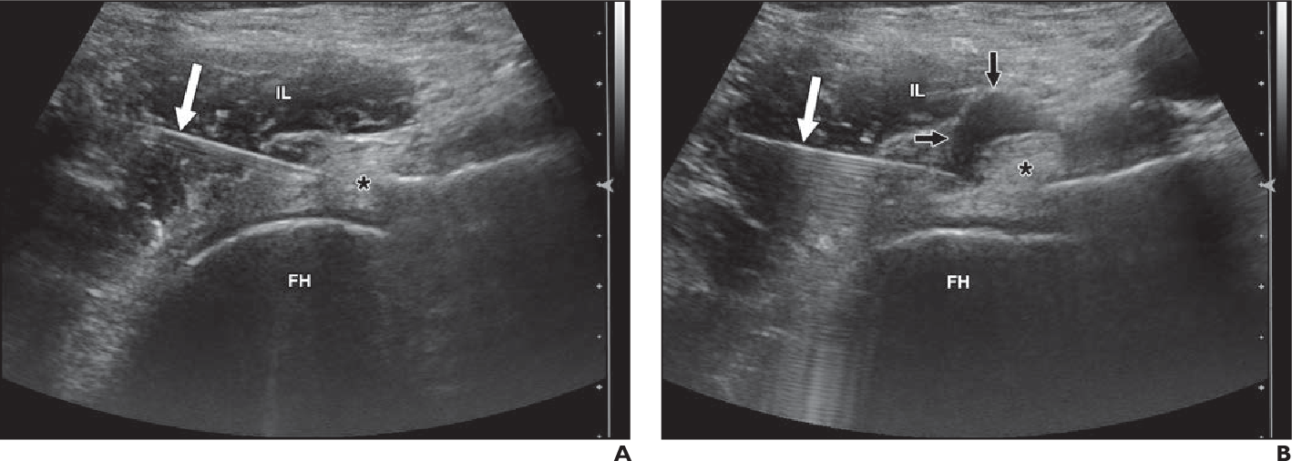 Figure 1—39 from Ultrasound-Guided Percutaneous Tendon Treatments ...