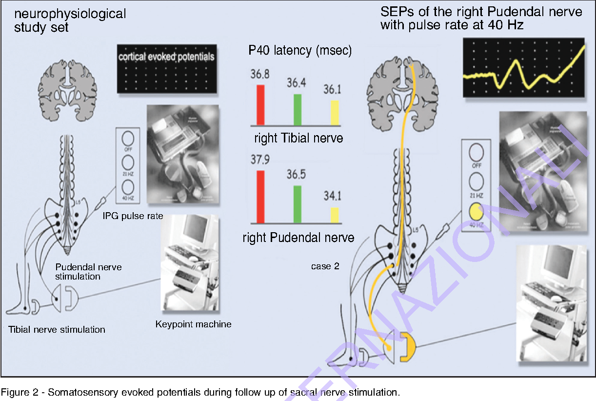 Figure 2 From Interventional Neurophysiology And An Implantable