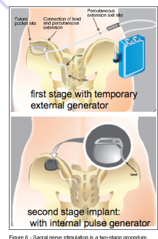Figure 6 From Interventional Neurophysiology And An Implantable