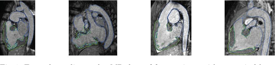 Figure 1 for Dilated Convolutional Neural Networks for Cardiovascular MR Segmentation in Congenital Heart Disease